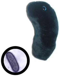 Giant Microbes Black Death
